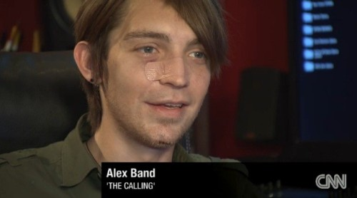 Alex Band après agression